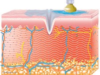 Graphic of Collagen Synthesis Begins
