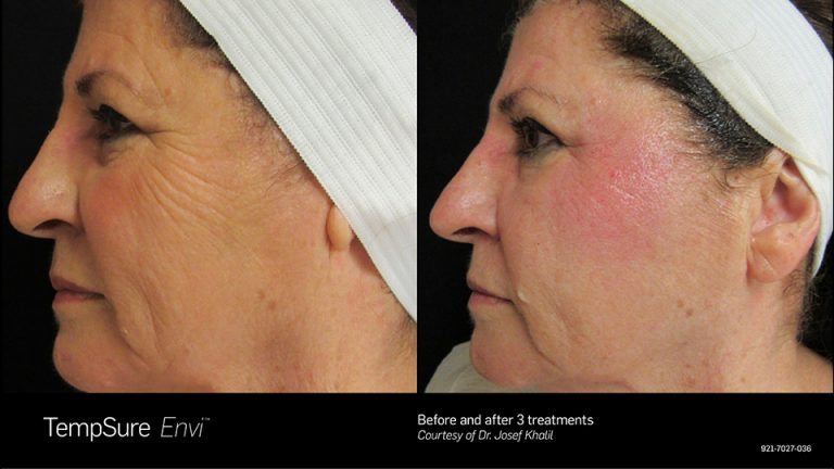 TempSure Before and After